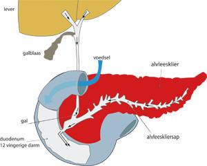 alvleeskliercarcinoom